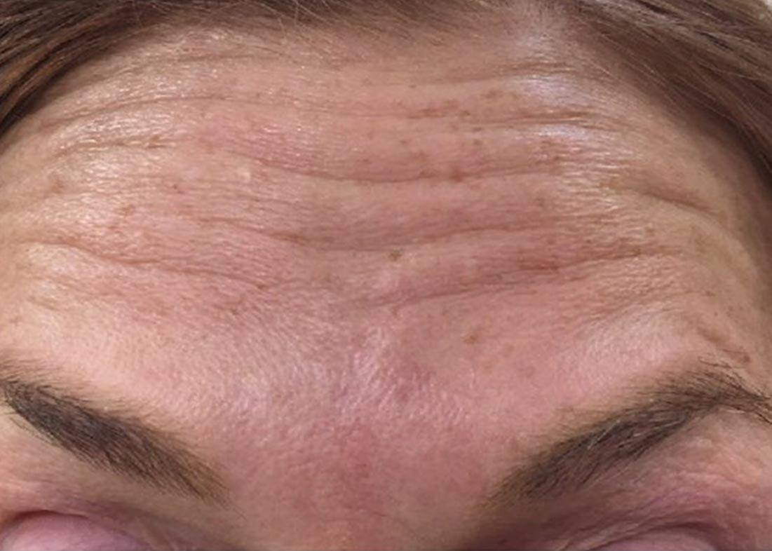 Before-Botox Results