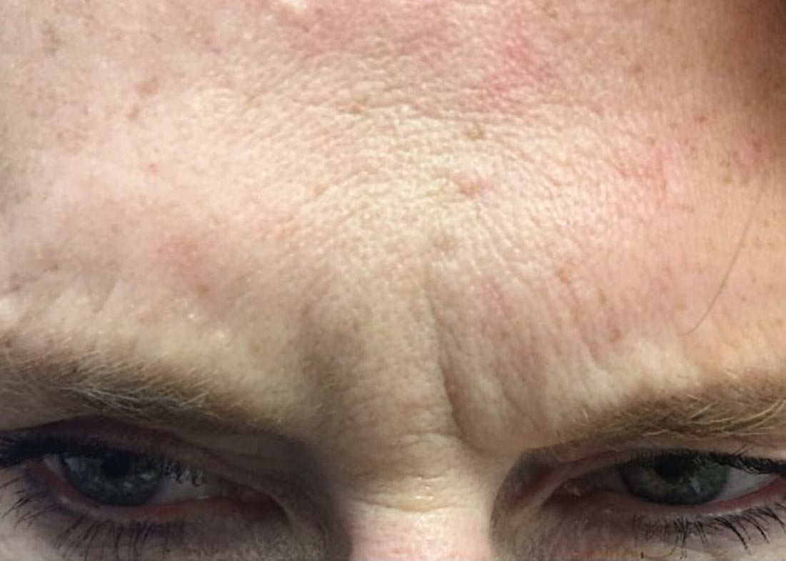 After-Botox Results