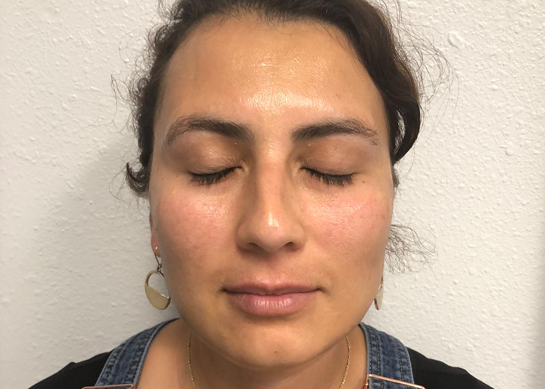 After-Hydrafacial Results