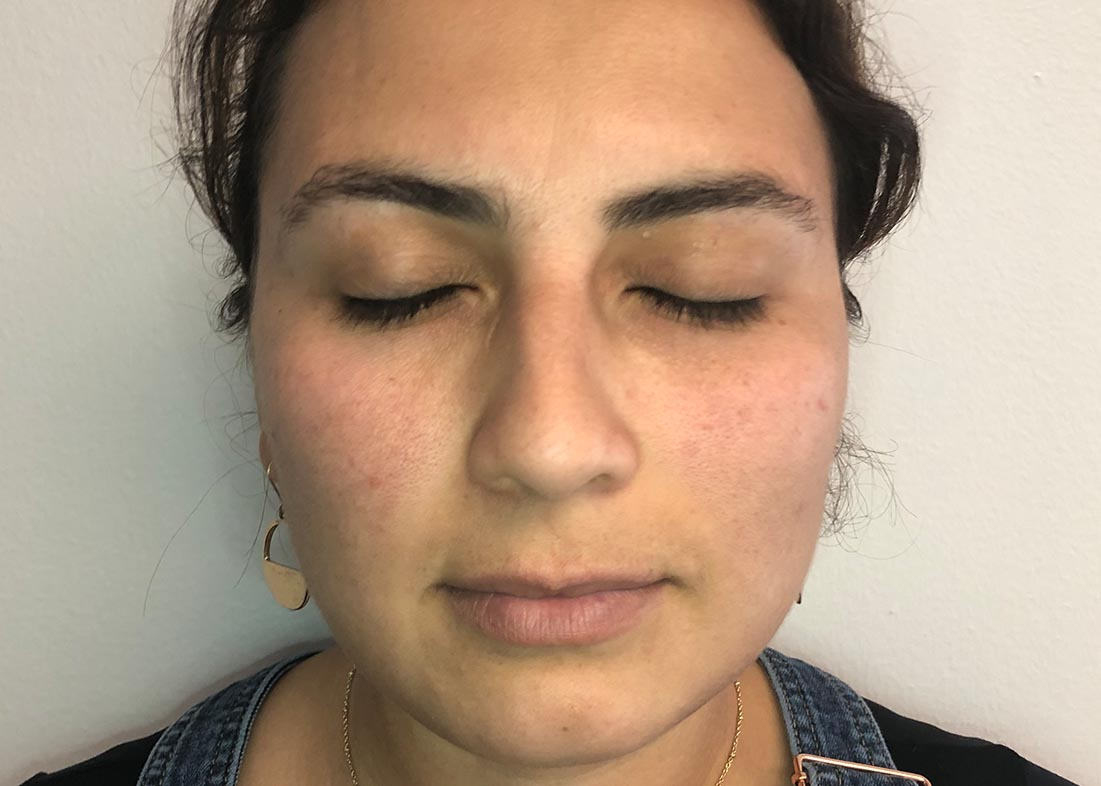 Before-Hydrafacial Results