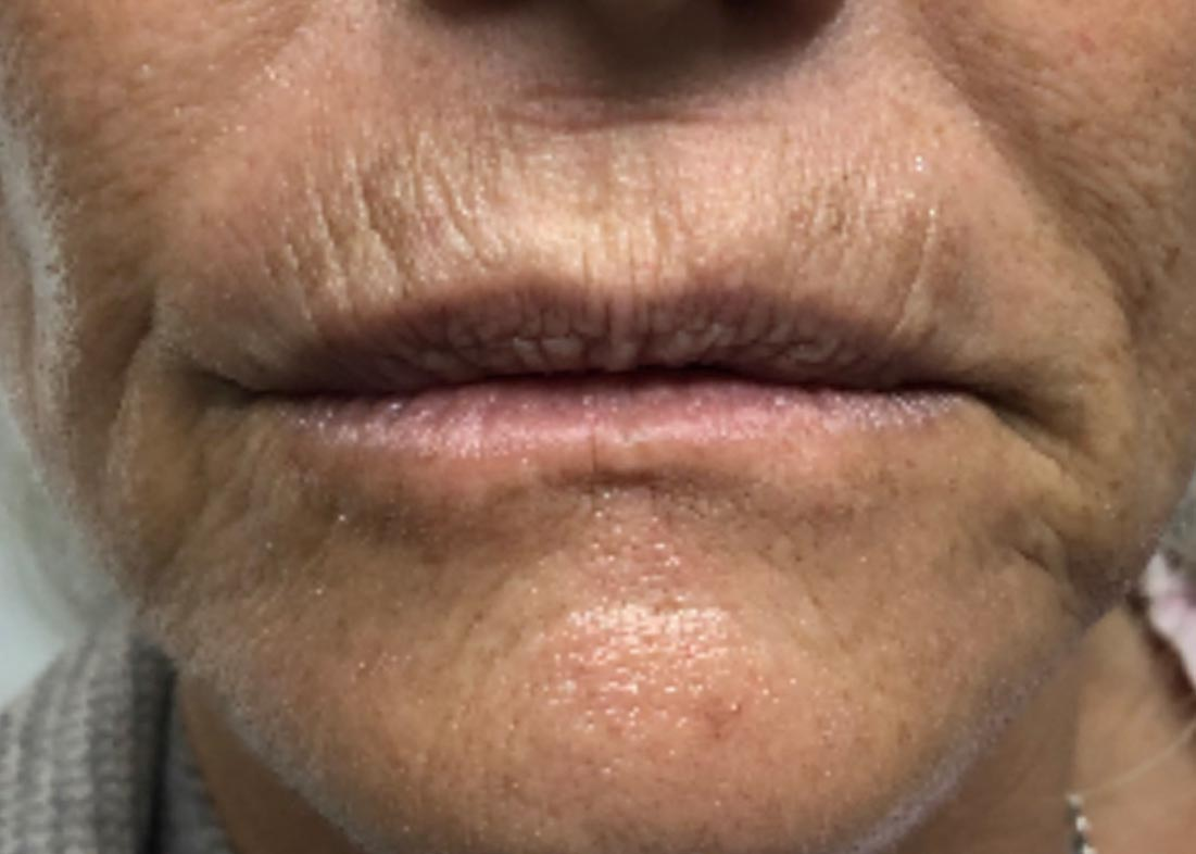 Before-Juvéderm® Vollure Results