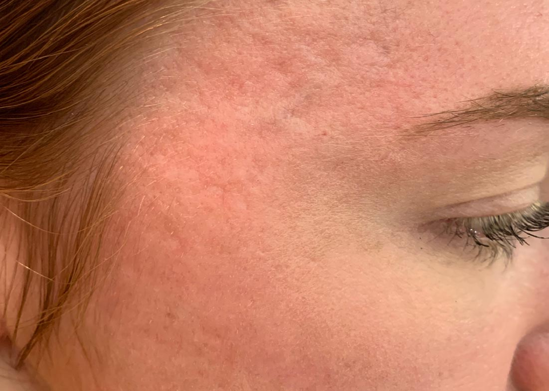Before-Microneedling Results