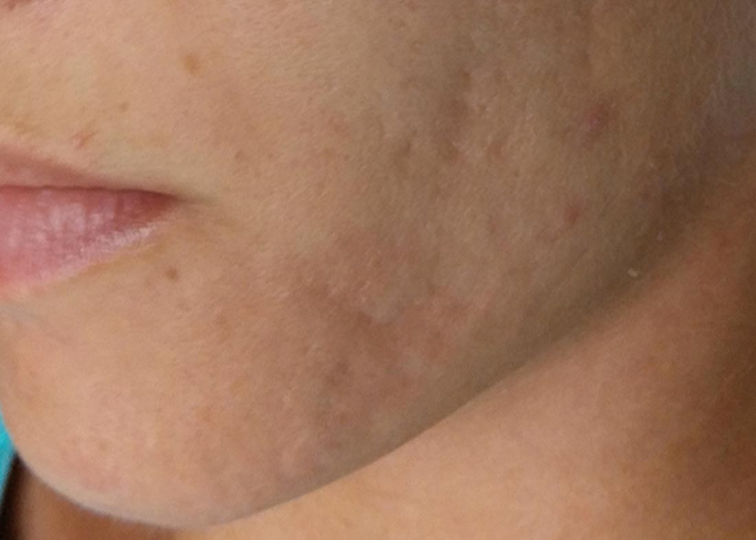 After-Microneedling Results